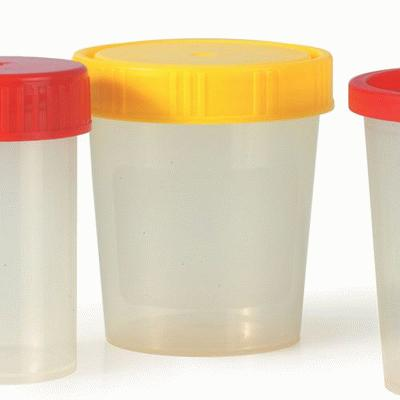 Urine Cups With Screw On Yellow Caps (10) Sterile