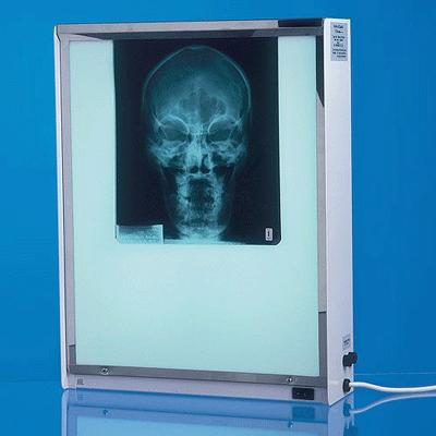 Select Single X-Ray Viewer